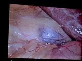 V Příbrami se provádí unikátní urologické operace, byli jsme při tom, račte s námi vstoupit na operační sál (26)