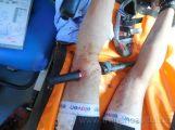 Sport může být nebezpečný. Cyklista si propíchl řídítky stehno (2)