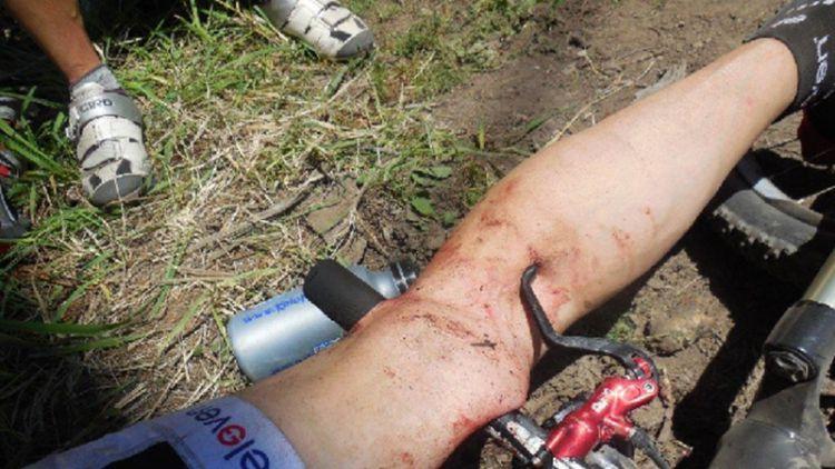 Sport může být nebezpečný. Cyklista si propíchl řídítky stehno