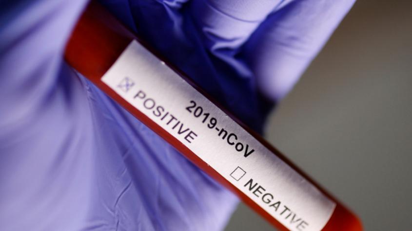 Česko má 434 případů koronaviru, Středočeský kraj eviduje 48 nakažených
