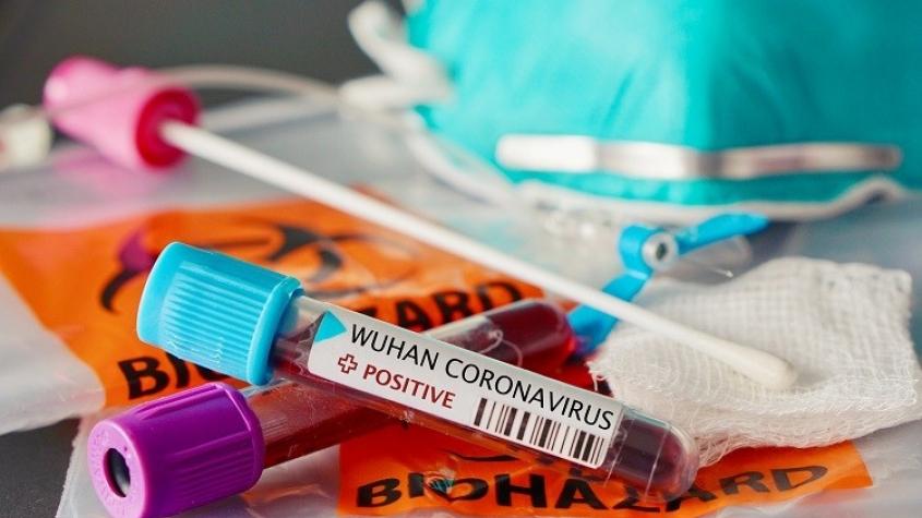 Příbramsko hlásí dalšího nakaženého koronavirem. Celkem onemocnělo osm osob