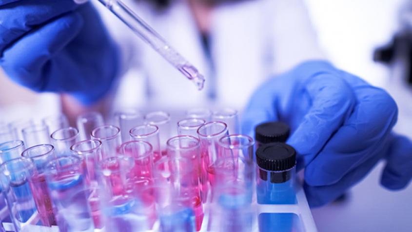 Česko má 995 případů koronaviru. Středočeský kraj je v těsném závěsu za Prahou
