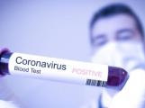 Koronavirem se nakazilo již 18 lidí. Podle vlády je aktuálně v Itálii asi 16.500 Čechů