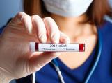 Nakažených koronavirem je již 26