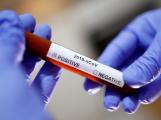 Příbramsko má první nakaženou ženu koronavirem