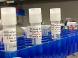 S nemocí COVID-19 v ČR zemřelo 44 lidí, uzdravilo se 67 pacientů